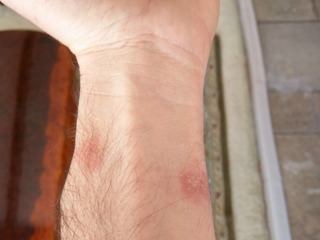 Fitbit slapped with first lawsuits over rashes