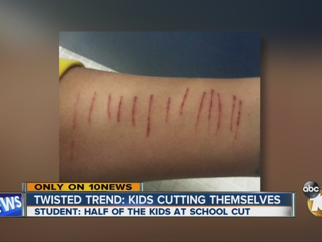 Twisted trend: Kids cutting themselves - 11pm