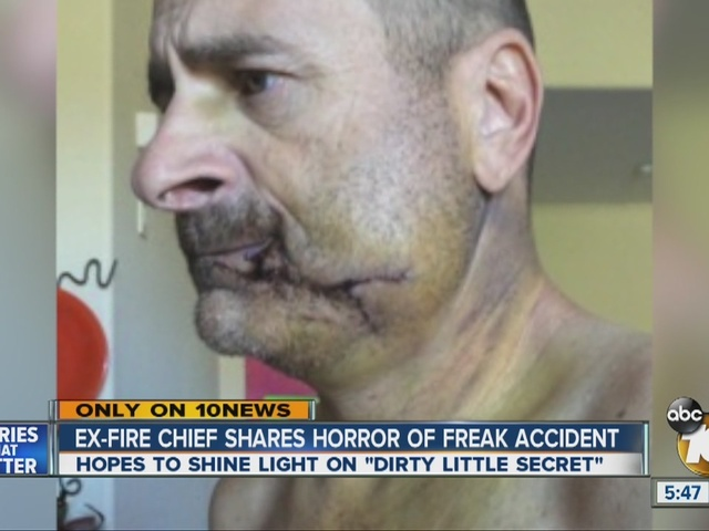 Only on 10News: Ex-fire chief shares horror of freak accident