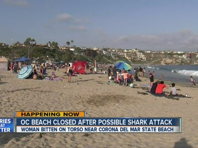 Shark attack feared in SoCal woman's injury