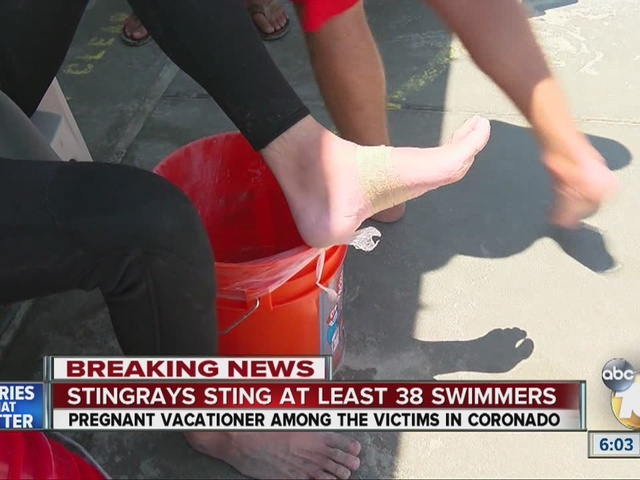 Stingrays sting at least 38 swimmers