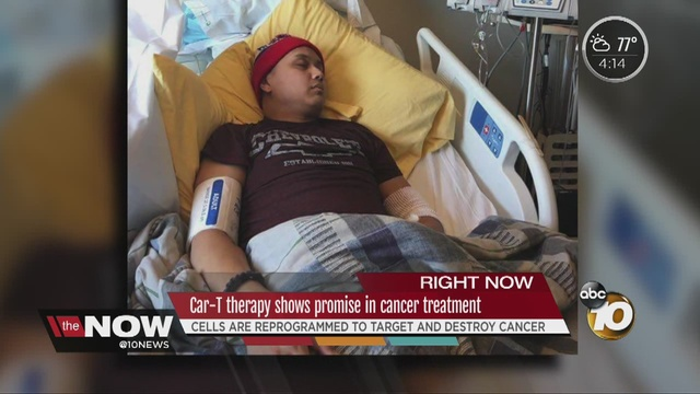 CAR T-Cell therapy shows promise in cancer treatment - 10News.com ...