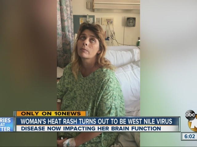 Woman's heat rash turns out to be West Nile virus