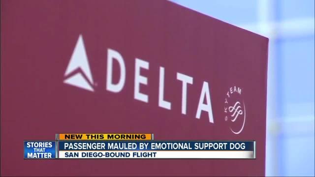 Man bitten on Delta flight by another passenger's dog