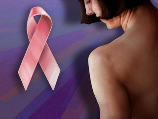 Image-Breast-Cancer-23479262-10933.jpg