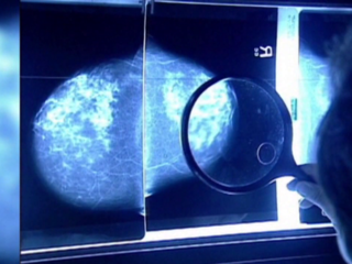 New hope for breast cancer patients