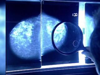Mammography van to stop in City of Broomfield