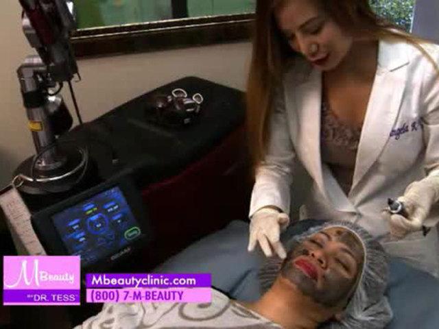 M Beauty: Treating acne