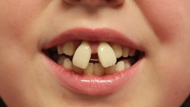 Orthodontists warn about dangers of diy braces 10news kgtv contributed solutioingenieria Images