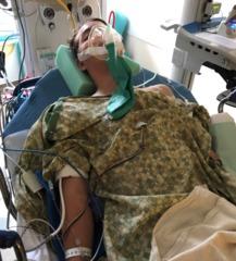 Calif. teen diagnosed with bacterial meningitis
