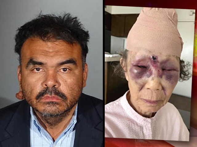 Suspect Rearrested In Violent Koreatown Beating Of 86-Year-Old Woman
