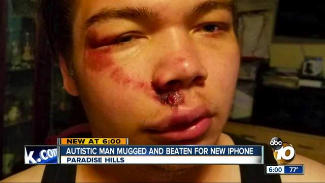 Autistic man mugged and beaten for iPhone